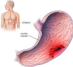 pathogenic effect of H. pylori
