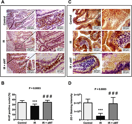 Melatonin protects rats from radiotherapy-induced small intestine toxicity