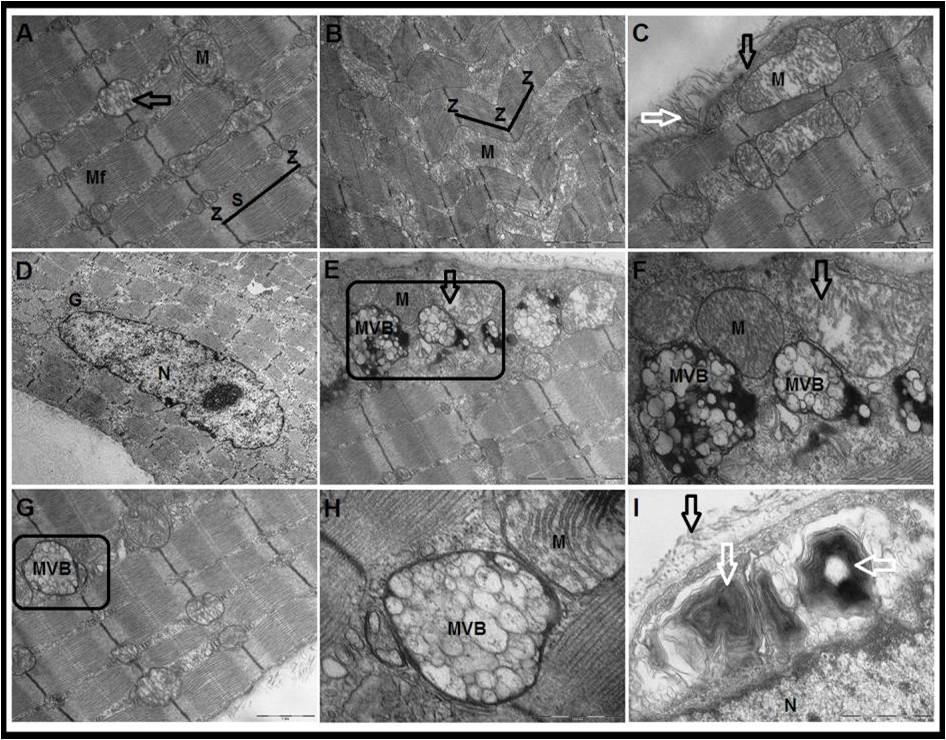 The protective effect of melatonin against age-associated sarcopenia-dependent tubular aggregates formation, lactate depletion and mitochondrial changes