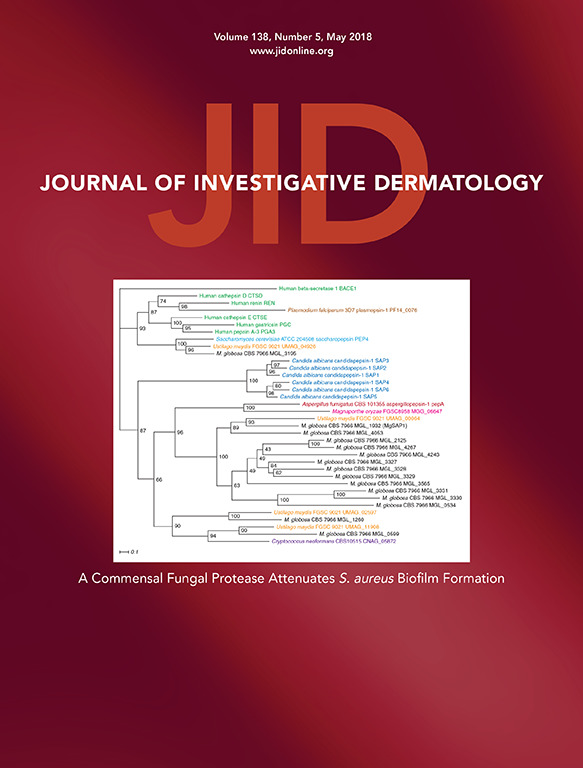Comparative study of the immunological profile in stable segmental and non-segmental Vitiligo patients undergoing melanocyte keratinocyte transplantation.