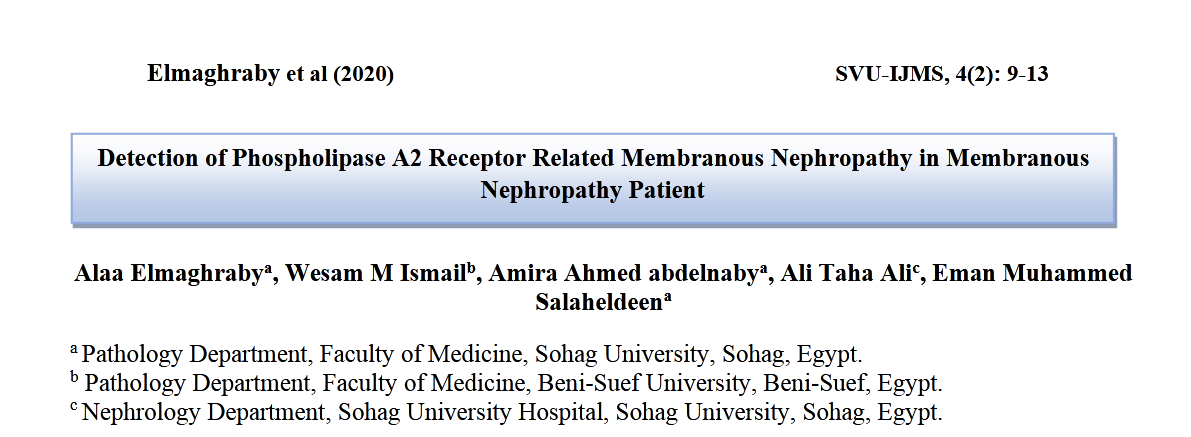 Detection of Phospholipase A2 Receptor Related Membranous Nephropathy in Membranous Nephropathy Patient.