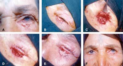 Reconstruction of Eyelid Defects after Excision of Eyelid Tumors