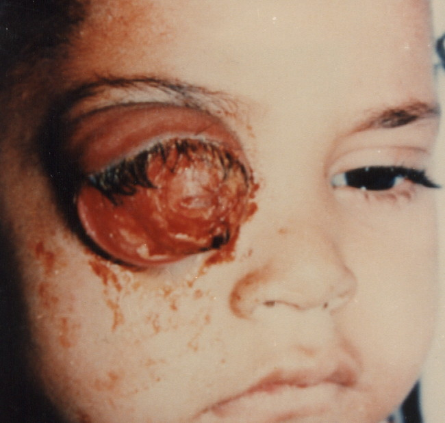 Extraocular Retinoblastoma: How to Avoid and How to Manage?
