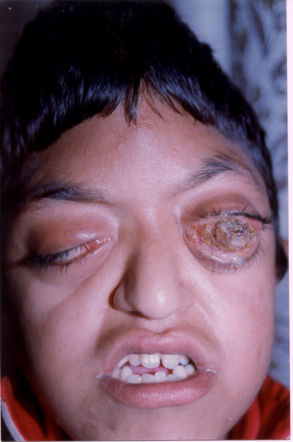 Crouzon's Syndrome: Variability in Clinical Severity