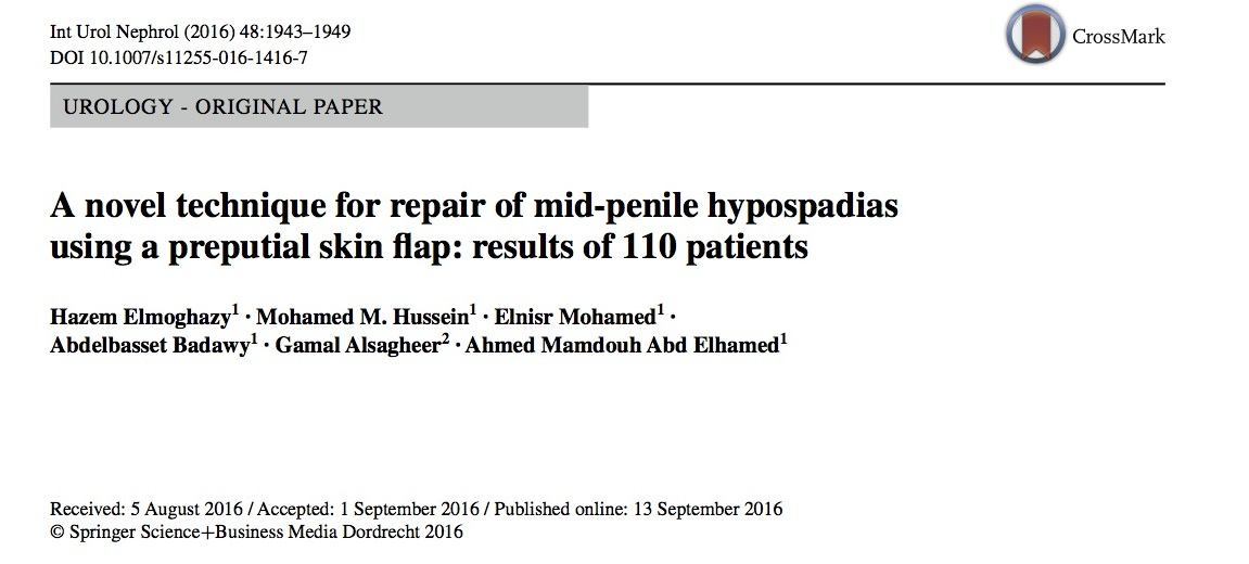 A novel technique for repair of mid‐penile hypospadias using a preputial skin flap: results of 110 patients