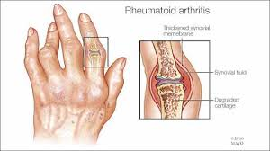 CONVENTIONAL THERAPY FOR EARLY INFLAMMATORY ARTHRITIS DOES NOT MODIFY PERIPHERAL BLOOD CYTOKINE PROFILES. In RHEUMATOLOGY