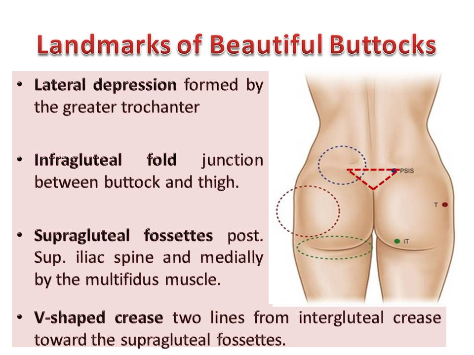 A Review of Recent Advances in Aesthetic Gluteoplasty and Buttock Contouring