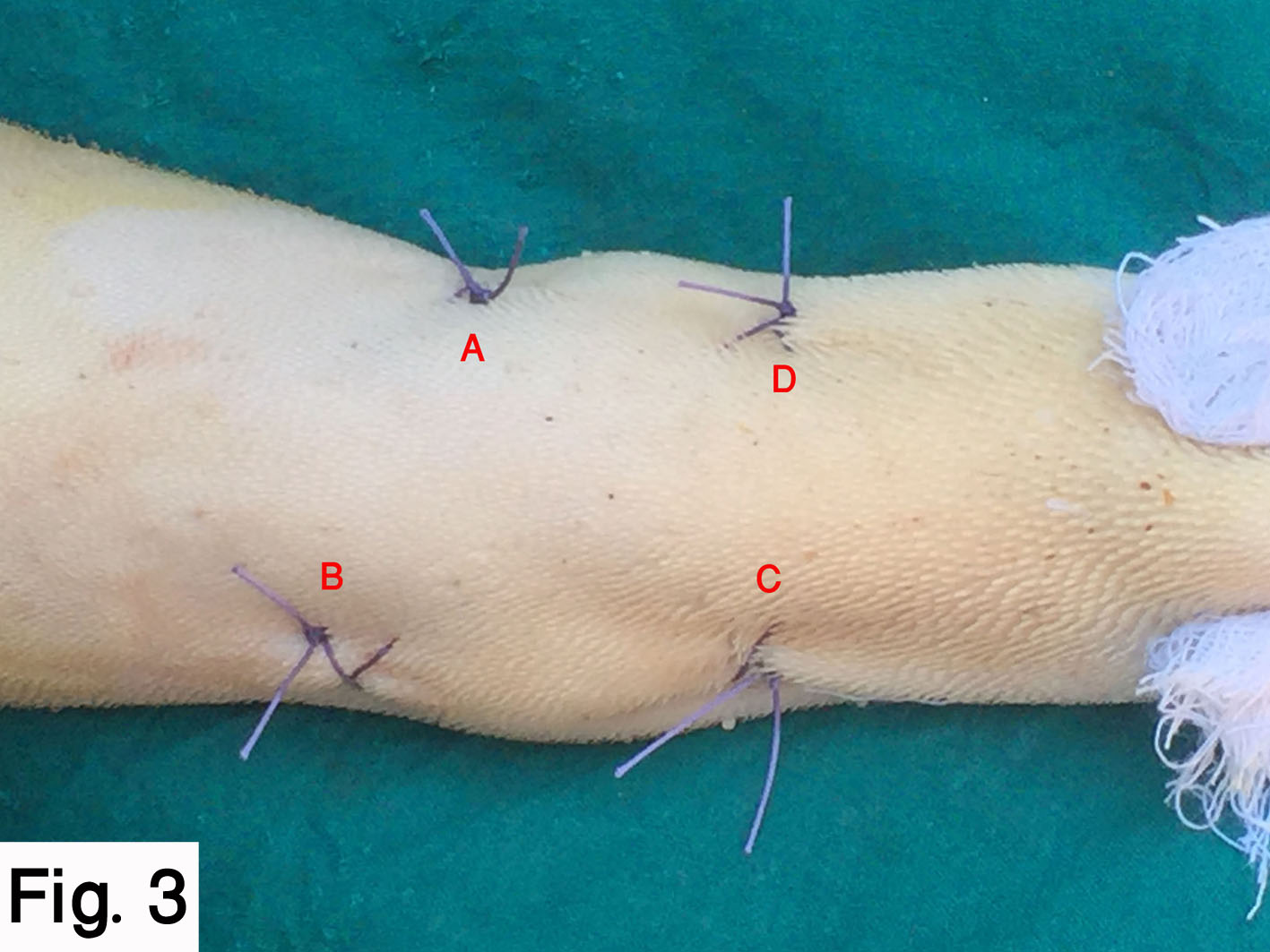 Intra-lingual suture pattern for prevention of self-suckling in cows