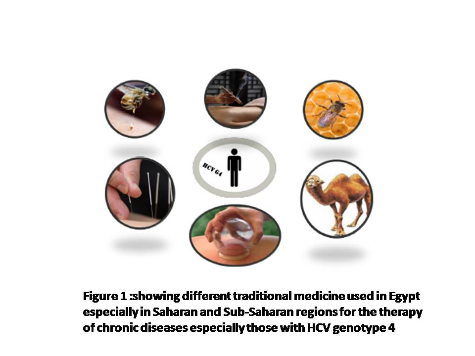 Efficacy of Bee Venom as an Anti-Viral Therapy for HCV Genotype 4