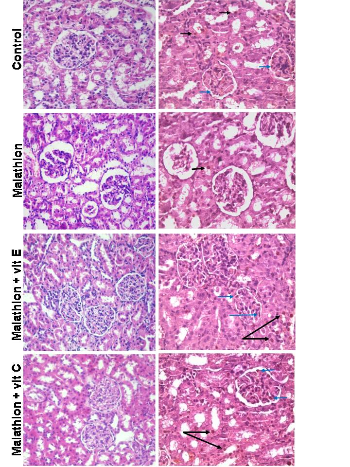 HISTOPATHOLOGICAL INSIGHT ON MALATHION INDUCED NEPHROPATHY WHICH IS AMELIORATED BY ANTIOXIDANTS USE; AN ANIMAL MODEL