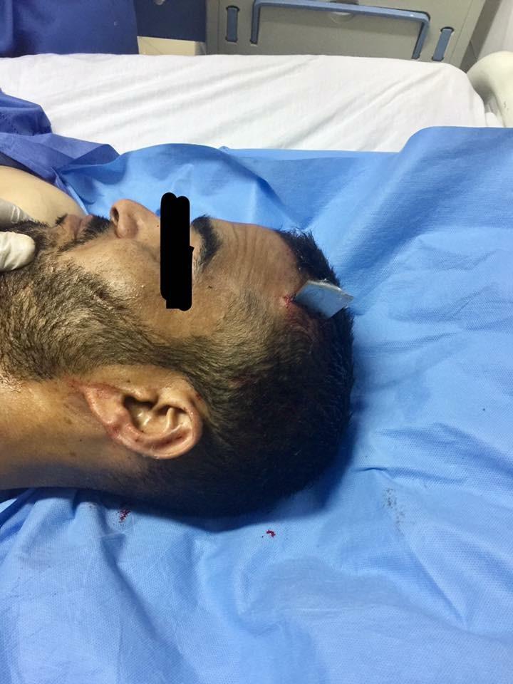 Non-missile penetrating brain injuries: cases registry in Sohag University Hospital
