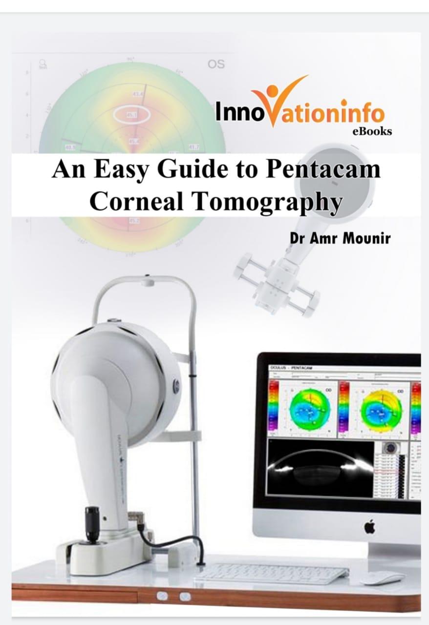 An Easy Guide to Pentacam Corneal Tomography