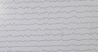 Comment in background of the following EEG