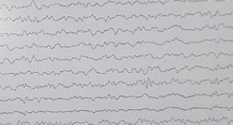 Diagnostic criteria of NMO spectrum