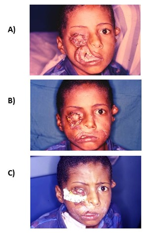 Management of Rare Craniofacial Anomalies With Soft Tissue Reconstruction on Charity Medical Missions