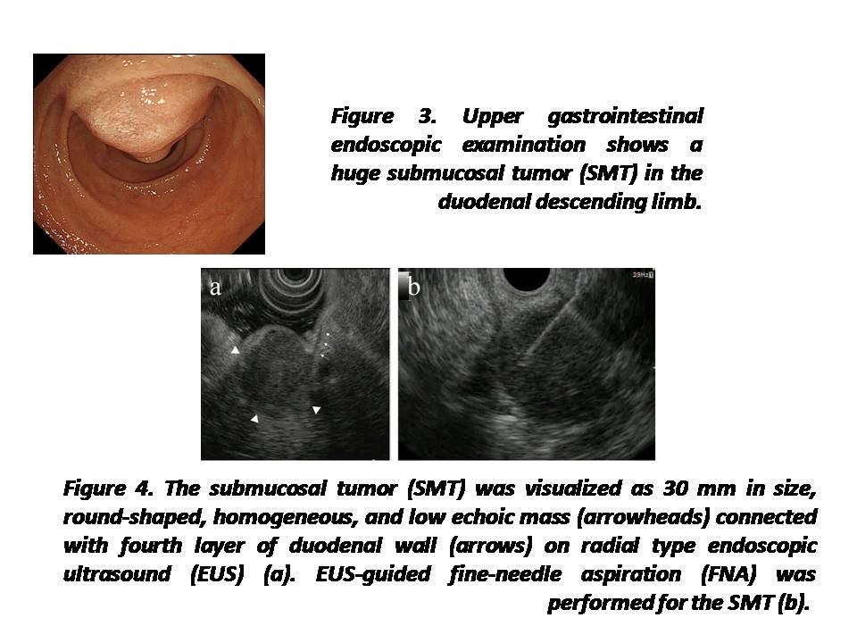 Asymptomatic Duodenal Metastasis from Small Cell Lung Cancer Diagnosed by Endoscopic Ultrasound-Guided Fine-Needle Aspiration.